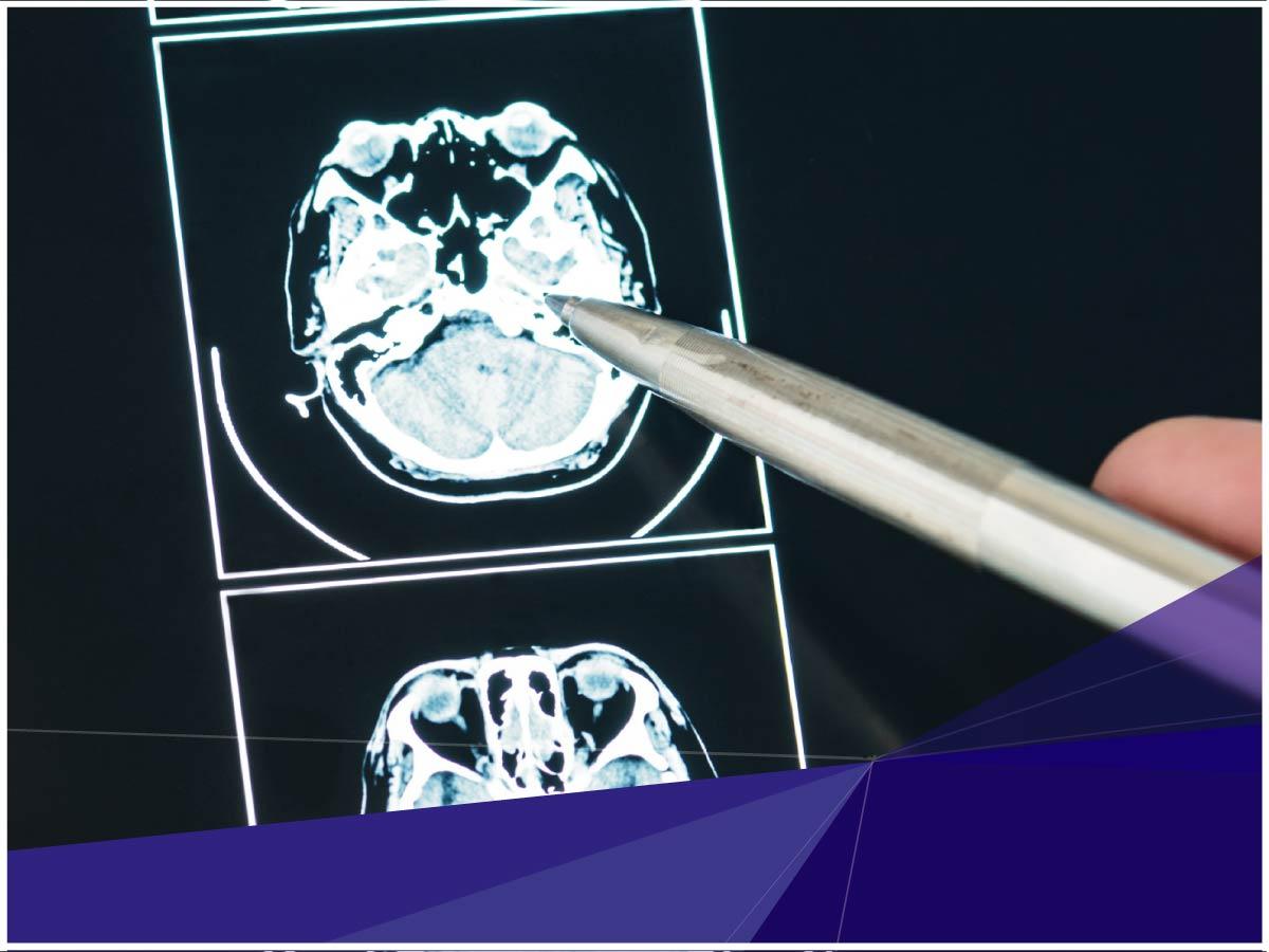 Investigador de Indoamérica realizó un estudio de niños con traumatismos craneoencefálicos en el Hospital Baca Ortiz